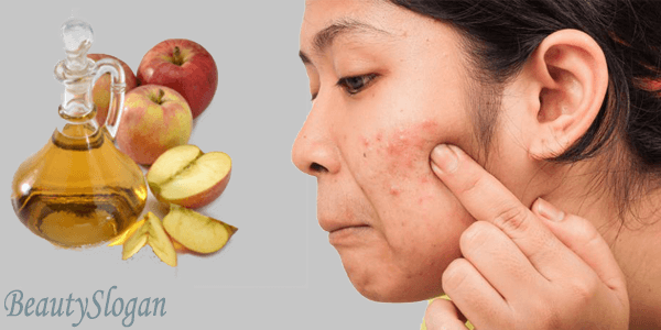 How to Use Apple Cider Vinegar for Acne Treatment